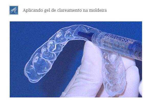Clareamento Dental Caseiro Tratamentos Clinica Odontologica Em